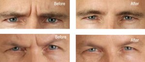 botox-gso-for-men